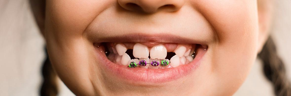 Freilegen von Zähnen - Zahngesundheit Schorndorf
